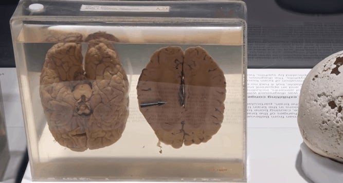 Einstein's Brain on Display in National Museum of Health and Medicine - Mythgyaan